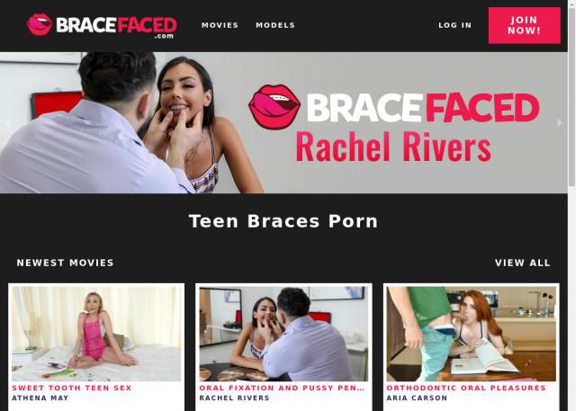 brace faced